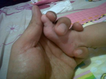 kaki-gendis.jpg